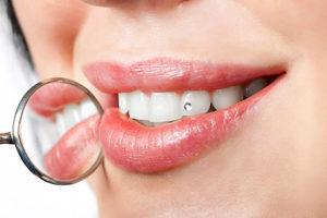 Скайсы и стразы для зубов