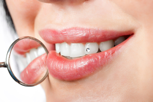 Скайс на зуб