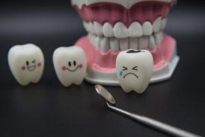 Трещина в эмали зуба
