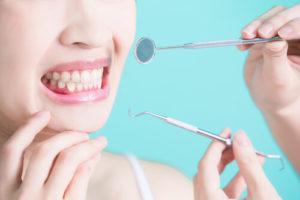Виды перфорации зуба