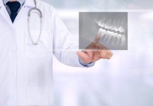Выравнивание зубов пломбировочным материалом