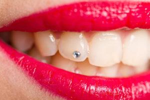 Уход за зубами с украшениями