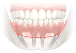 Имплантация нижней челюсти при полной адентии