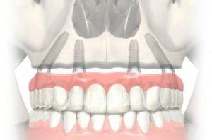 восстановить зубной ряд методом протезирования All-in-for