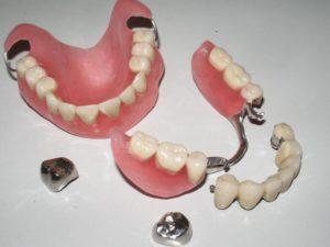 Временный зубной протез на верхнюю челюсть