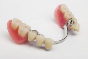 Зубной протез на нижнюю челюсть при частичном отсутствии зубов