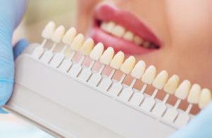 Что делать после имплантации зубов